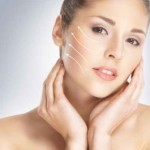Preguntas frecuentes sobre el Botox