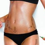 Diferencias entre abdominoplastia y lipoescultura