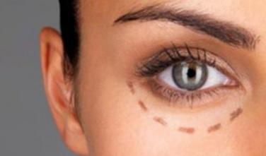 cirugia estetica de parpados en Valencia Dr. Puig