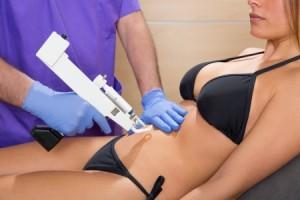 Mesoterapia cuerpo Valencia