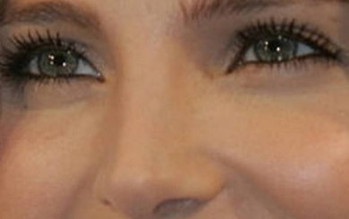 cirugia estetica de nariz: causa médica o estética