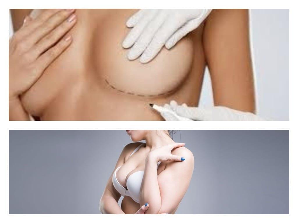 marcado de zona de ataque en el seno y mujer con pecho aumentado