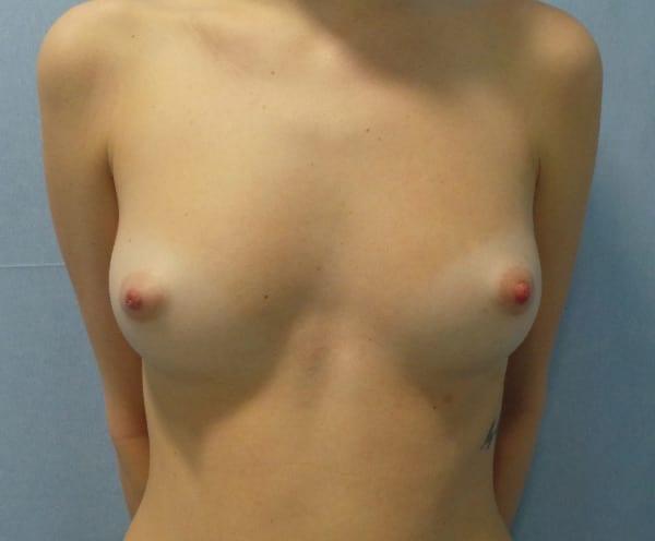 Antes de la operación de aumento de senos