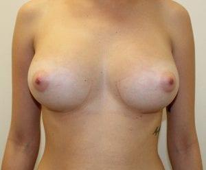 Despues de la cirugía de mamoplastia de aumento