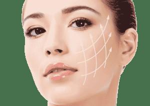 Tratamiento con Hilos tensores Silhouette Soft Valencia y Gandía