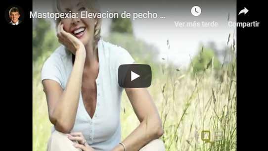 mastopexia Valencia Dr.Puig: la operación de levantamiento de senos