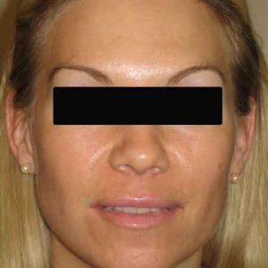 Después de un tratamiento de Botox con el Dr. Puig