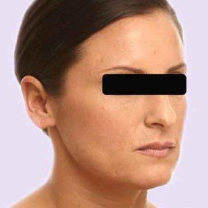 Resultados del Botox con el Dr.Puig
