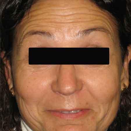 Tratamientos faciales de Botox en Valencia y Gandía Dr. Puig