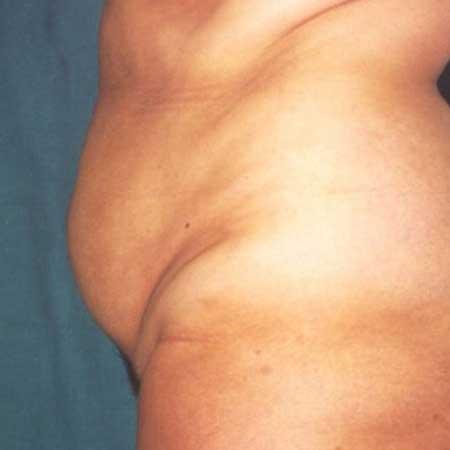 resultados cirugía de abdomen Valencia y gandia dr. Puig