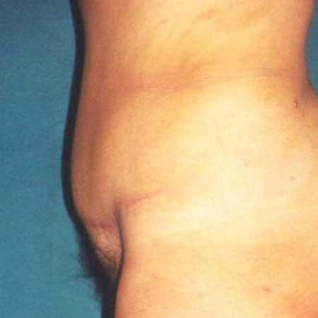 foto antes cirugía de abdomen valencia y gandia