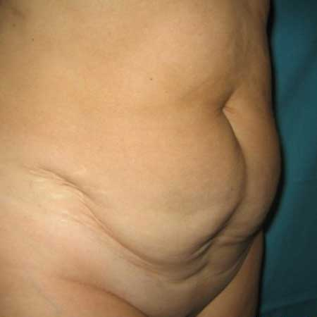 abdominoplastia gandia Dr. Puig