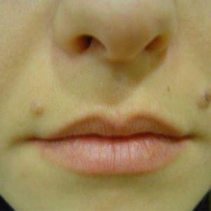 relleno de labios Dr.Puig