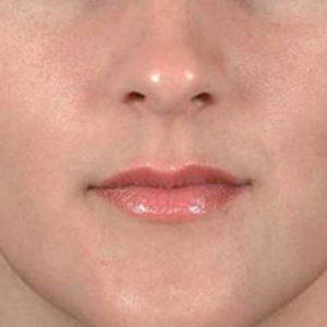 rellenos faciales de labios en Valencia Dr. Puig
