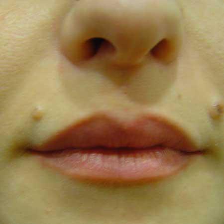 resultados rellenos labiales Dr.Puig