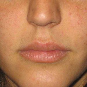Después de un relleno de labios con el Dr. Puig