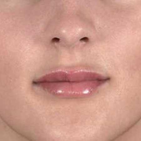 Después de una relleno facial de labios en Valencia y Gandía con el Dr Julio Puig