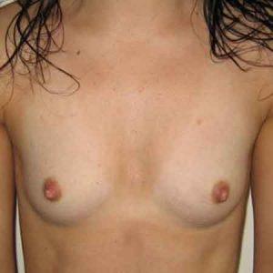 mamoplastia de aumento Dr. Puig
