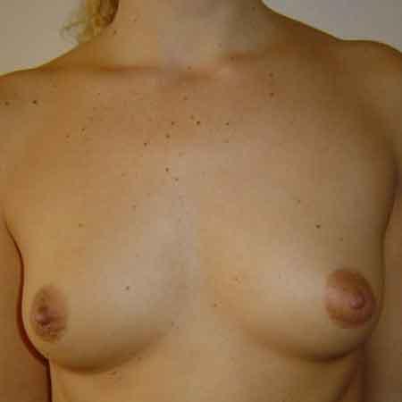 Cirugía de aumento de pecho Valencia y Gandia Dr. Puig