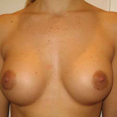 mamoplastia de aumento Dr. Julio Puig