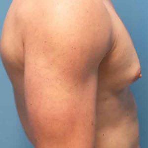 reducción de pecho masculina en Valencia