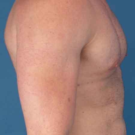 resultados mastopexia con el Dr. Puig