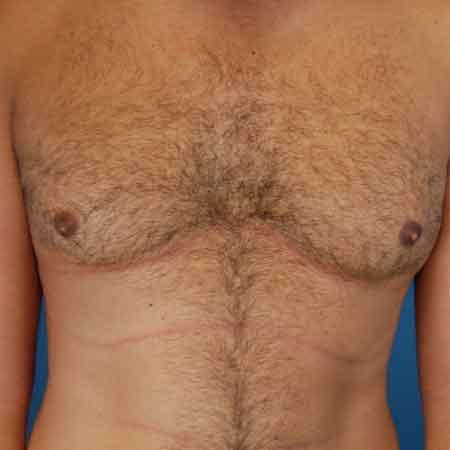 Ginecomastia o reducción de pechos en hombres Valencia Dr. Julio Puig