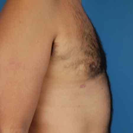 Reducción de mamas masculina en Gandía Julio Puig.