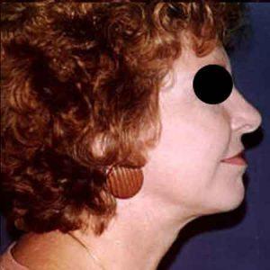 Lifting facial en Gandía Dr. Julio Puig