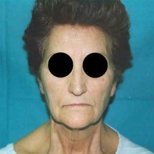 Levantamiento facial Dr. Julio Puig