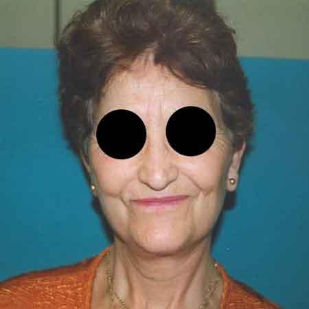 Resultados cirugía de lifting facial Dr. Julio Puig.