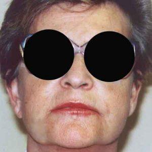 Los mejores resultados para tu cara con el lifting facial.