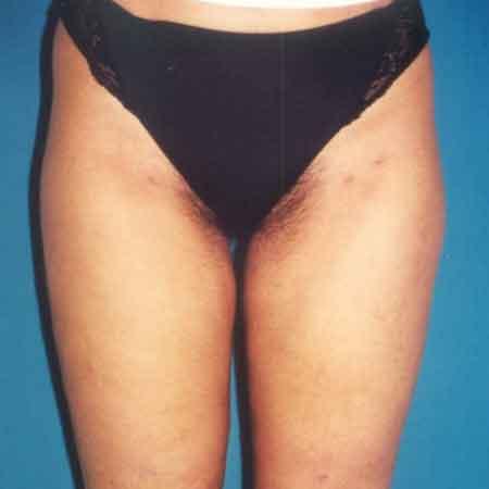 resultado de una liposucción con el Dr. Puig