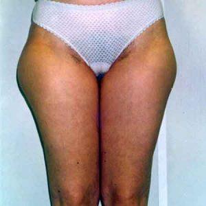 liposucción de muslos valencia Julio Puig