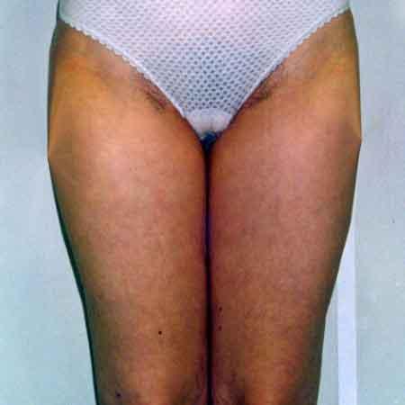 Contornea tus piernas con una liposucción en Valencia o Gandía con el doctor Puig.