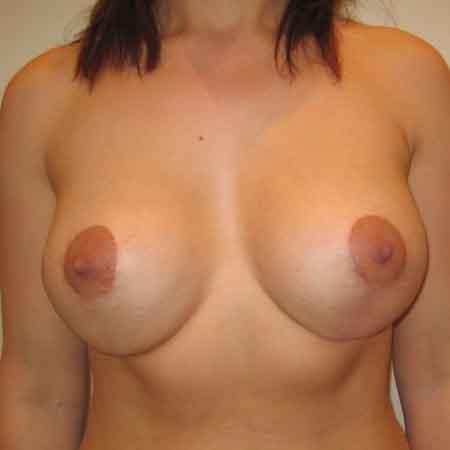 resultados de una elevación de pecho en la clíncia Julio Puig
