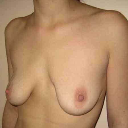 Elevación de mamas Gandía
