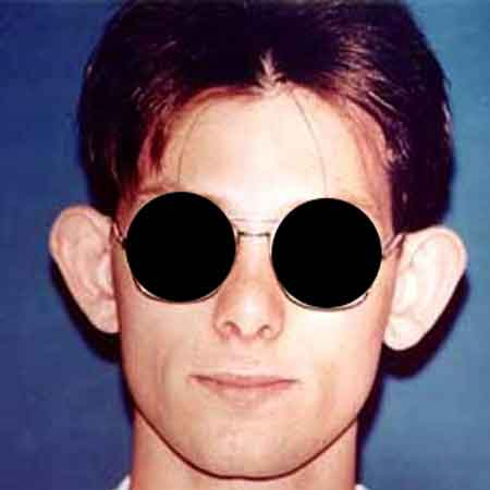 cirugia de orejas valencia