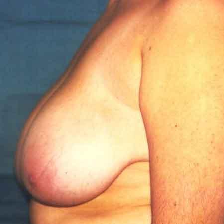 cirugía de reducción de pecho Dr. Puig