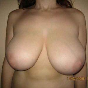 cirugia de reducción de senos en Valencia