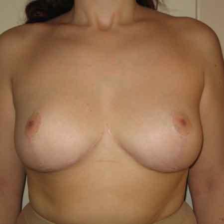 mamoplastia de reducción en Gandía Dr. Puig