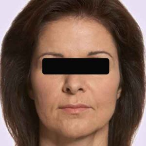 Rostro sin arrugas con los rellenos faciales botox y juvederm con el Dr. Puig