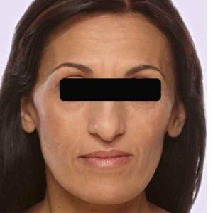 Rellenos faciales de Juvederm en Valencia y Gandía Dr. Puig