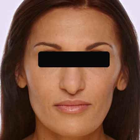 Rostro sin arrugas con Botox y Juvederm en la Clínica Dr. Puig.