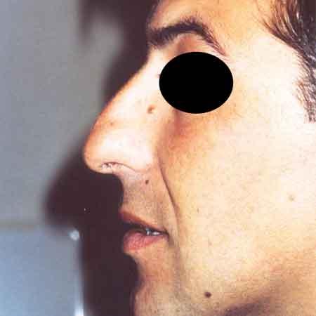 cirugía de nariz en Valencia y Gandía.