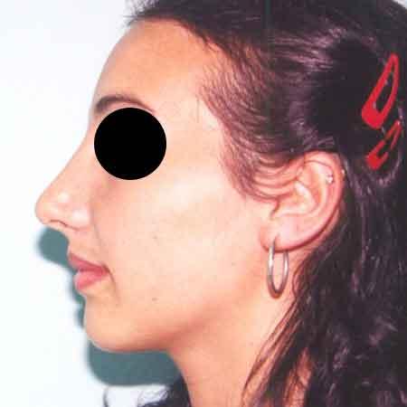 Foto Después de una rinoplastia. Cirugía nasal Dr.Puig