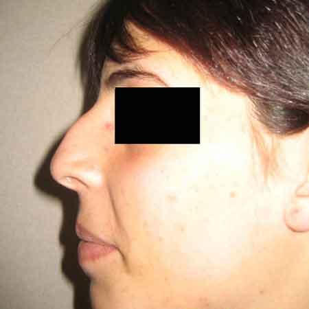 cirugia de nariz dr.Puig