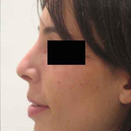 resultado de una rinoplastia