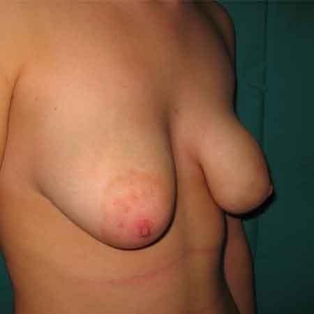 cirugía de senos tubulares Dr. Puig.