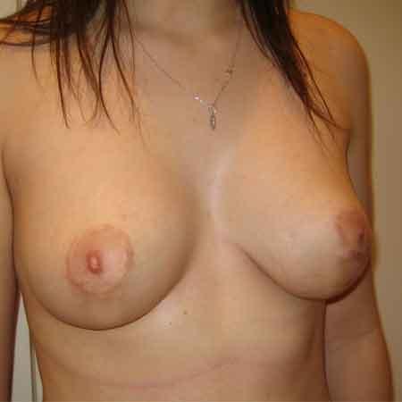 Después de la cirugía de pechos tuberosos en Valencia.